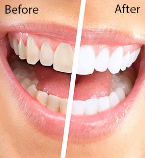 Cosmetic Dental Services White Bear Lake Minnesota